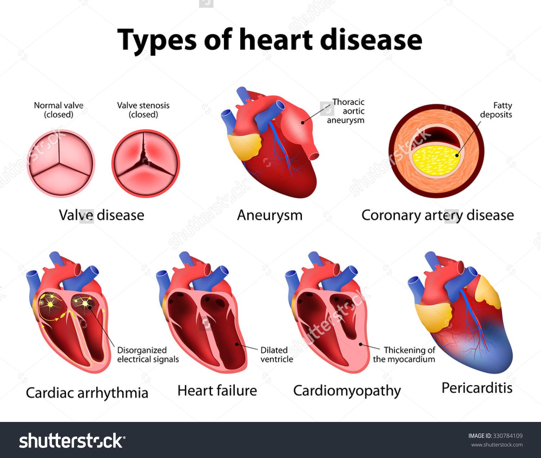 heart disease more